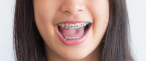 Close up of a girl smiling and showing off her braces