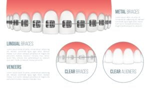 Graphic showing different types of braces